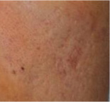 acne scar removal after