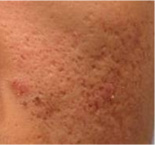 acne scar removal before
