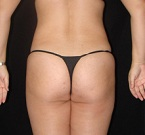 cellulite treatment back after
