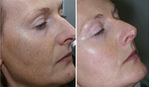Bellair Laser Clinic - Photorejuvenation (IPL)