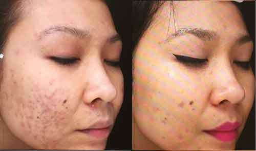 Bellair Laser Clinic - Acne Injection Treatments