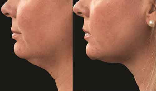 Bellair Laser Clinic Before And After Pictures