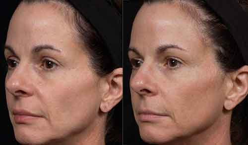Bellair Laser Clinic - Thermage Skin Tightening
